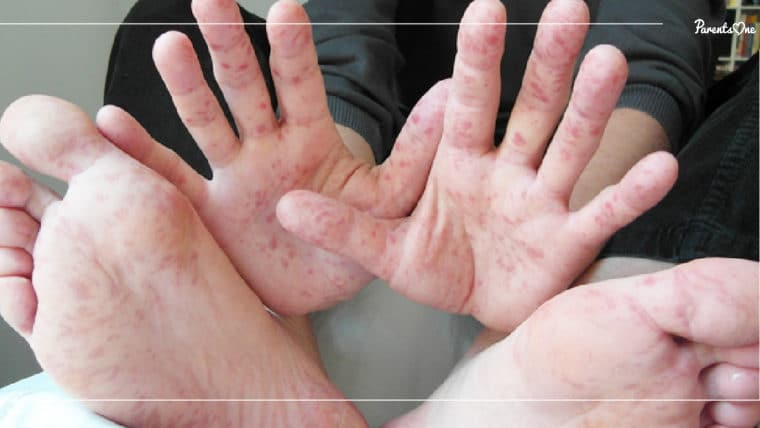 NEWS: ระวังเด็กเล็กป่วยเป็นโรคมือ เท้า ปาก ควรสอนให้เด็กล้างมือเป็นประจำ