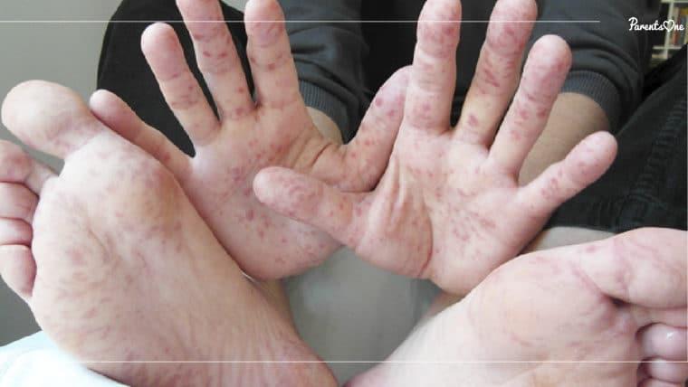 """NEWS: พ่อแม่เฝ้าระวัง! กรมควบคุมโรคเผย เด็กเป็นโรค """"มือ เท้า ปาก"""" กว่า 18,000 คน"""