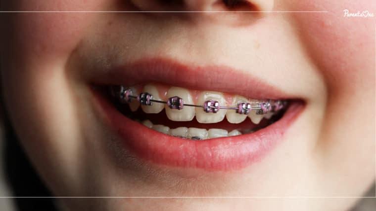 NEWS: กรมการแพทย์เผยอายุที่เหมาะสมที่สุดในการจัดฟันคือ 10-14 ปี