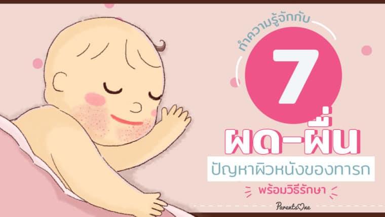 ทำความรู้จักกับ 7 ผด-ผื่น ปัญหาผิวหนังของทารก พร้อมวิธีรักษา
