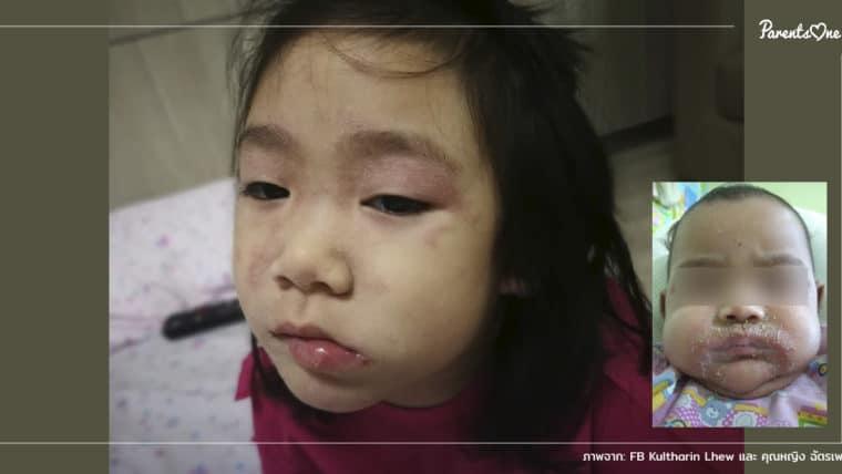 NEWS: พ่อแม่ระวัง! โรค 4S ผิวหนังลอกในเด็กเพราะติดเชื้อจากการถูกสัมผัส