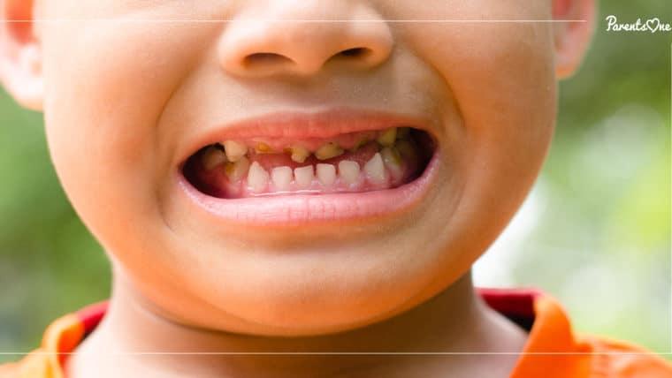 NEWS: ระวัง! ปล่อยให้ลูกฟันน้ำนมผุ เสี่ยงติดเชื้อฟันผุทะลุโพรงประสาทฟัน