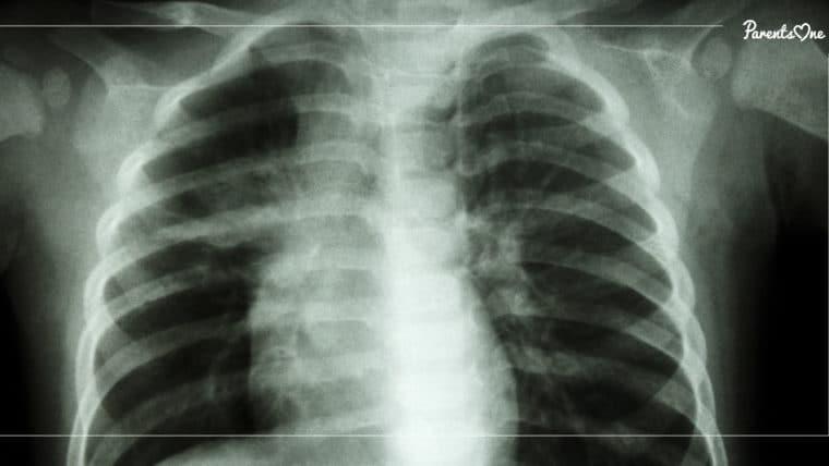 NEWS: ปอดของเด็กจะแย่ลง หากได้รับฝุ่น PM 2.5 เป็นเวลานาน