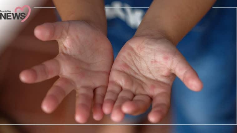 NEWS: ระวังลูกป่วย โรคมือ เท้า ปากยอดฮิต กรมควบคุมโรคแนะ 4 วิธีรับมือ