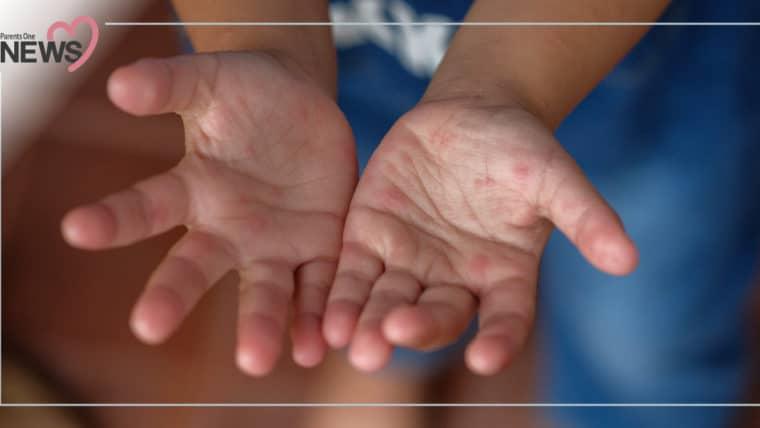 NEWS: เพิ่มขึ้นอย่างต่อเนื่อง สถานการณ์โรคมือเท้าปาก พบผู้ป่วยแล้วกว่า 21,984 ราย
