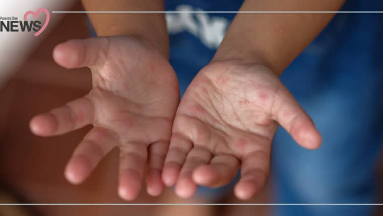 NEWS: ระบาดไม่หยุด! เด็กป่วยโรคมือ เท้า ปากอีกแล้ว โดยเฉพาะในเด็กเล็ก 1-3 ปี