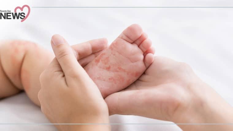 NEWS: อนามัยโลกเตือน ปีนี้โรคหัดระบาดหนัก สถิติสูงสุดในรอบ 14 ปี