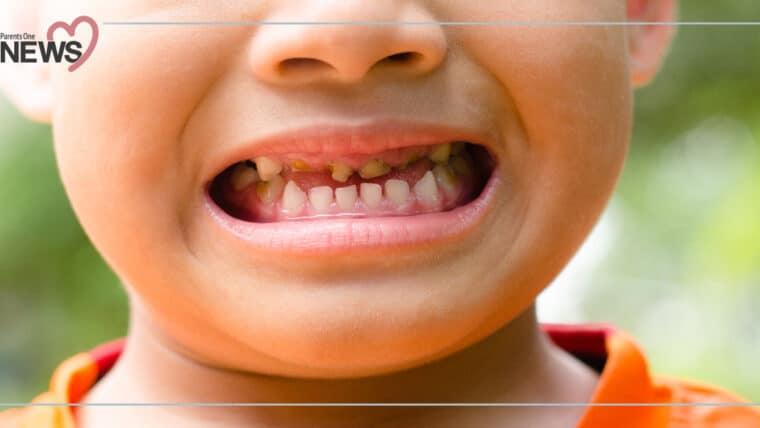 NEWS: กรมอนามัยเผย เด็กไทยฟันผุกว่า 75.6% อาจทำให้พัฒนาการล่าช้าได้