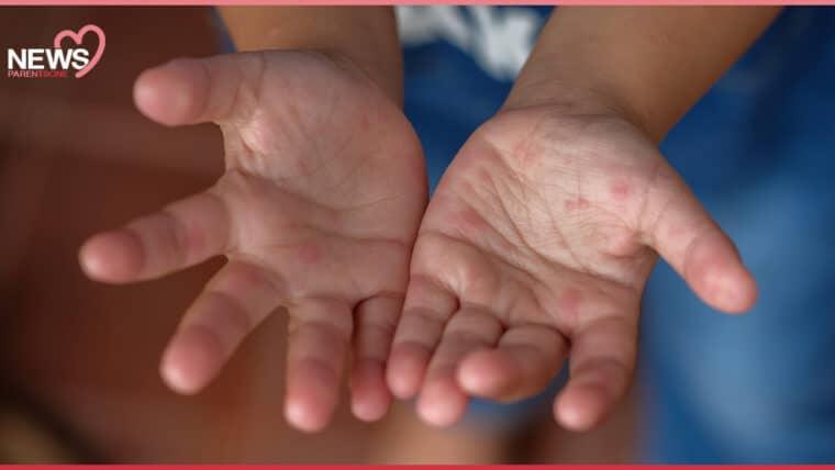 NEWS: พ่อแม่ต้องระวัง โรคมือ เท้า ปาก ระบาดอีกแล้ว เด็กป่วยแล้ว 17,715 ราย