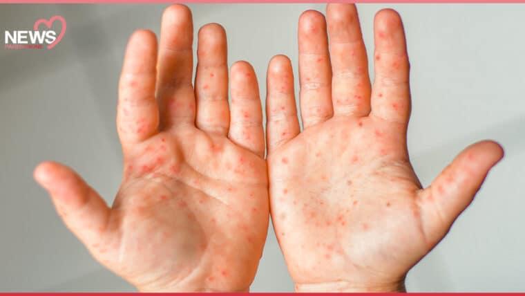 NEWS: โรคฮิตหน้าหนาว กรมควบคุมโรคแนะนำ ระวังเด็กป่วยโรคมือ เท้า ปาก