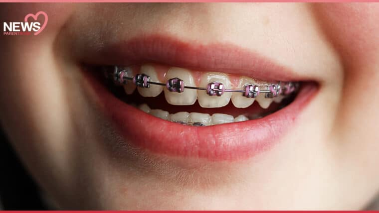 NEWS: ไขข้อสงสัย เด็กเล็กจัดฟันได้ แต่ต้องดูแลช่องปากให้ดี