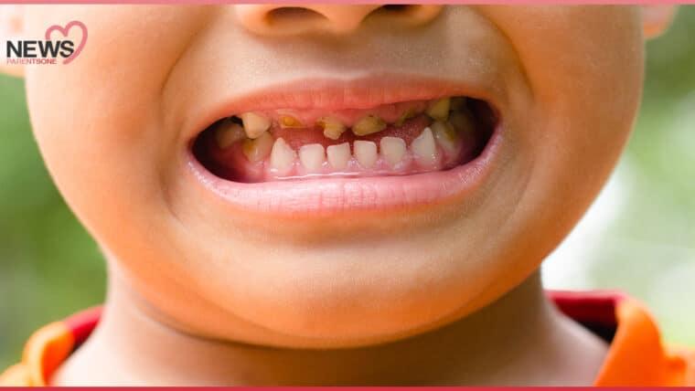 NEWS: กรมอนามัยเตือน ปล่อยลูกฟันน้ำนมผุ เสี่ยงพัฒนาการล่าช้า