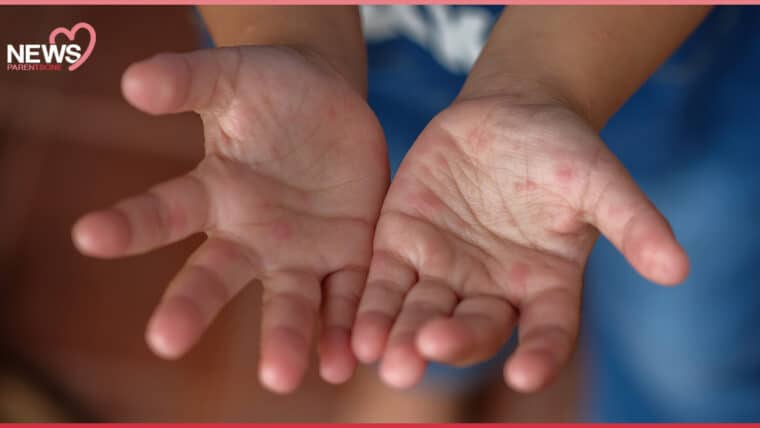 NEWS: อยู่บ้านก็ต้องระวัง เด็กป่วยโรคมือ เท้า ปาก ปีนี้ป่วยแล้ว 14,559 ราย