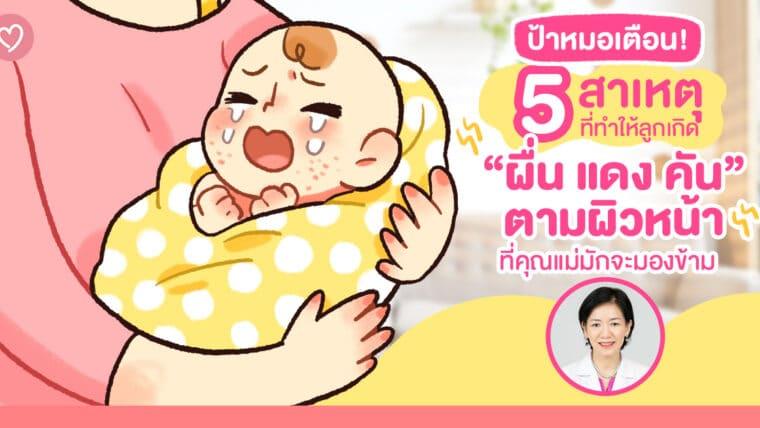 """ป้าหมอเตือน! 5 สาเหตุที่ทำให้ลูกเกิด """"ผื่น แดง คัน"""" ตามผิวหน้า ที่คุณแม่มักจะมองข้าม"""